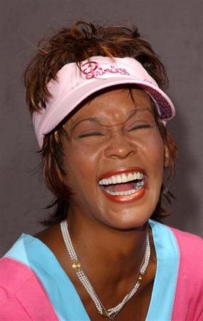 Whitney Houston Teeth