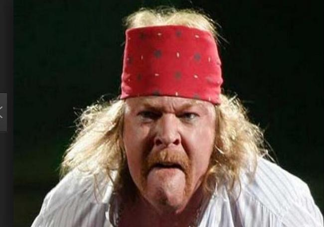 Axl Rose – Now – Too many late nights and probably drugs, sex & rock n Roll
