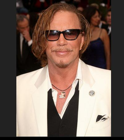 Mickey Rourke – Now after lots of bad cosmetic surgery