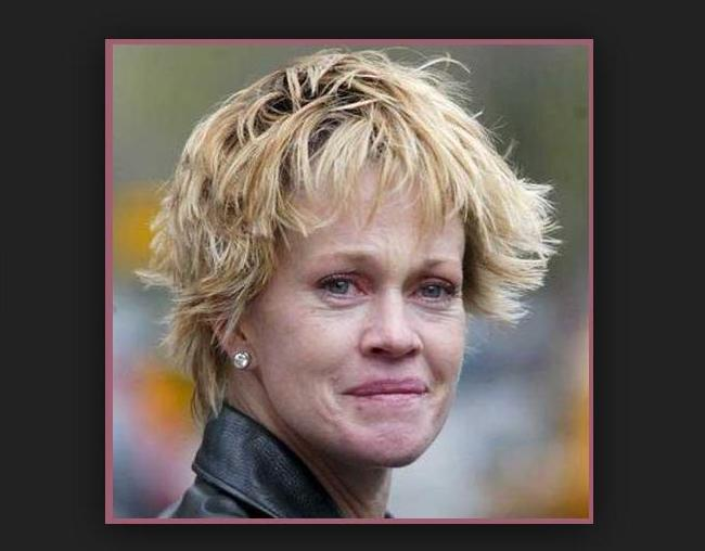 Melanie Griffith – Now & lots of cosmetic surgery gone wrong!