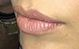 Who Do These Lips Belong To?