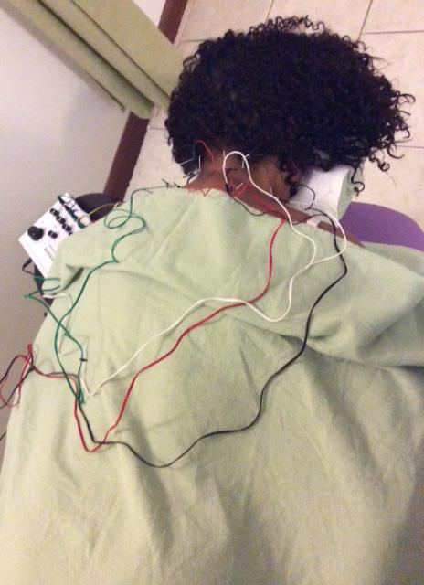 Jasmine Sanders gets acupuncture treatment.