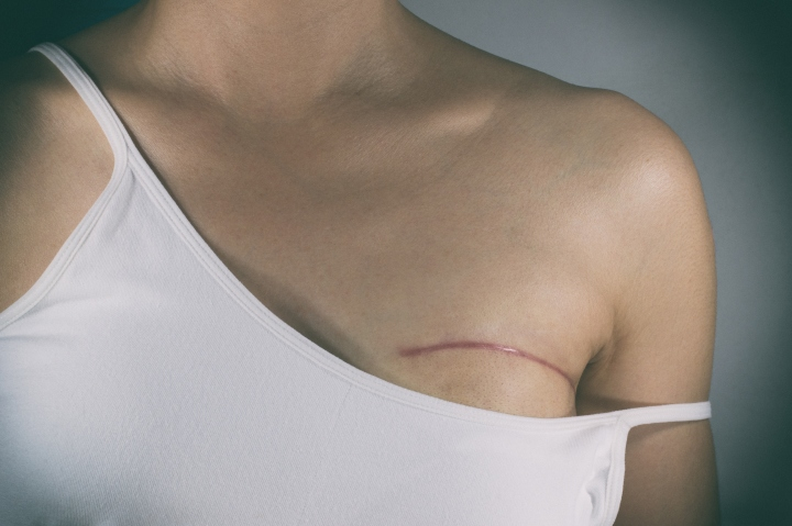 Myth: You can't get cancer after a mastectomy