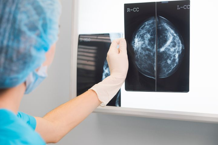 Myth: If your mammography report is negative, there is nothing to worry about.